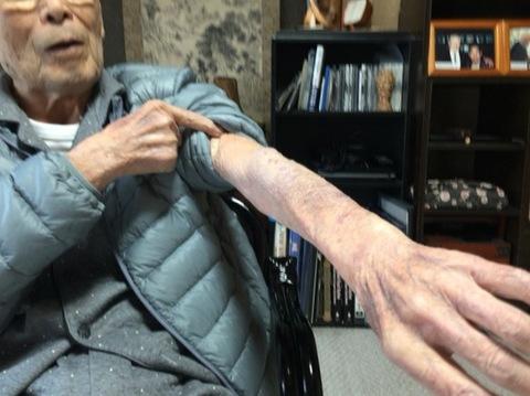 原田さんの腕.jpgのサムネール画像